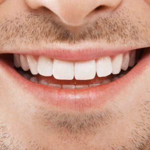 Für ein strahlendes Lächeln